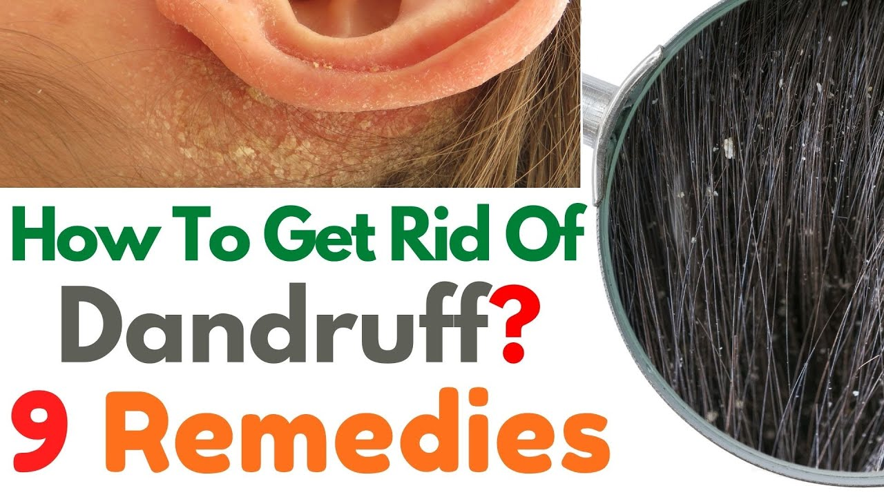 How to Get Rid of Dandruff? | 9 Remedies to Get Rid of Dandruff