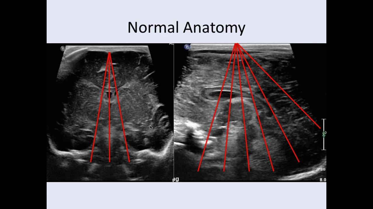 Cranial Ultrasound Anatomy - YouTube