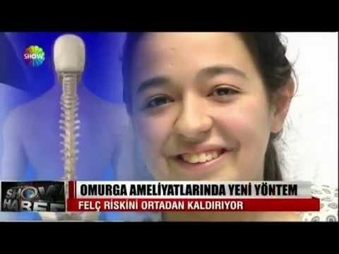 Prof.Dr Alpaslan ŞENKÖYLÜ   Skolyoz ameliyatı