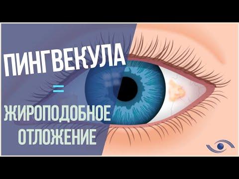 ПИНГВЕКУЛА ГЛАЗА: Лечение пингвекулы в Новосибирске!