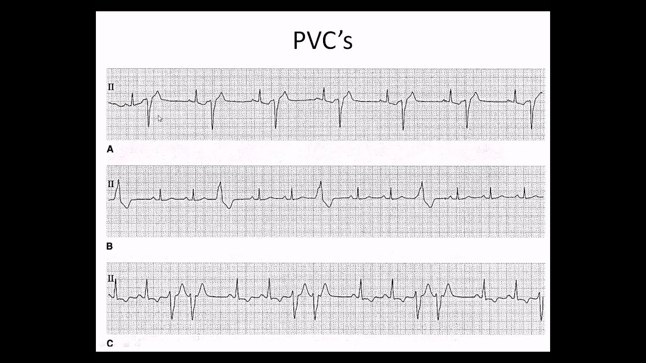 easy ekg premature ventricular contractions and atrial fibrillation