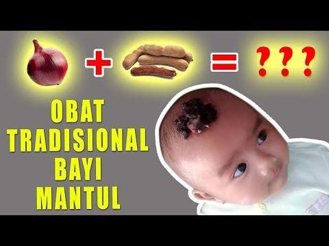 cara-mengobati-hidung-mampet-/-pilek-pada-bayi---obat-tradisional