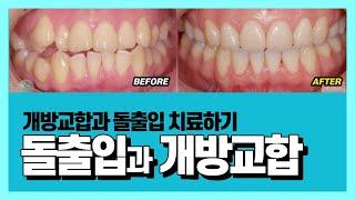 돌출입과 개방교합 치아교정 개방교합+돌출입 전후 치료후…