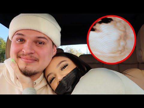 *EMOTIONAL* FIRST TIME SEEING OUR BABY'S FACE - AlondraDessy