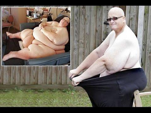 Толстяк похудел на 186 кг - forumsdromru