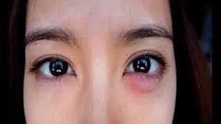 Olhos pode inchados o que causar