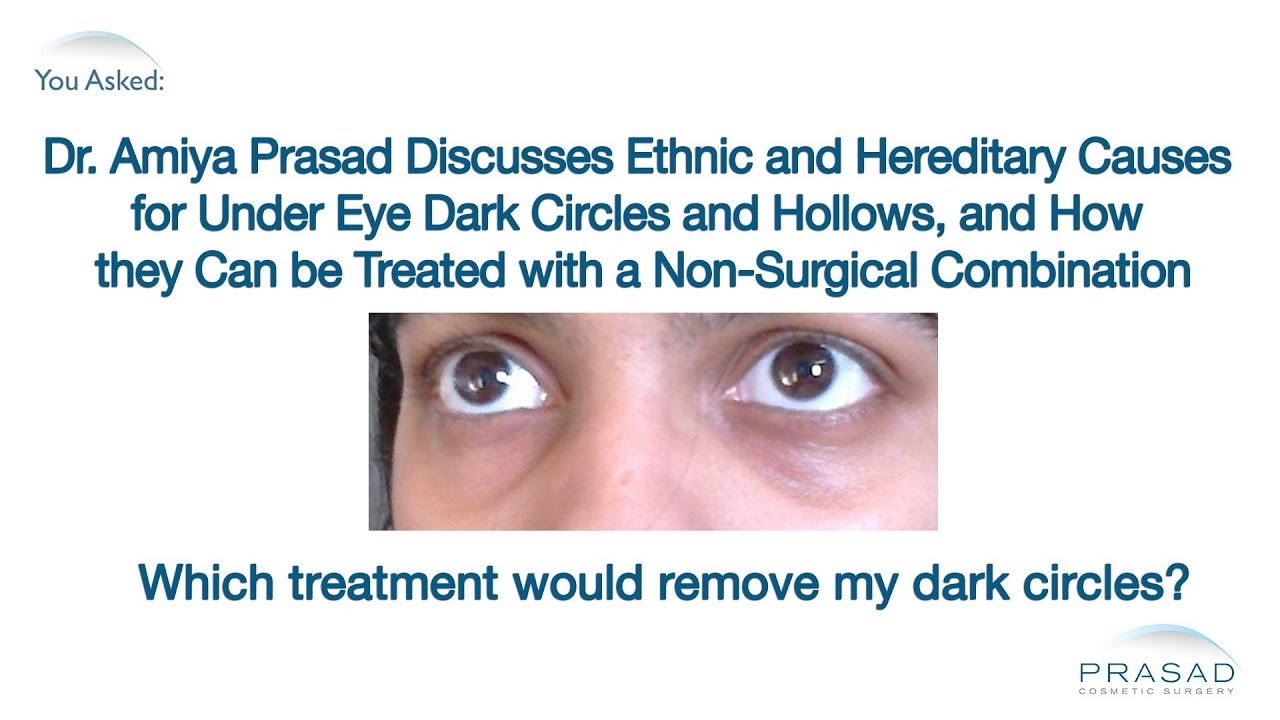 How Under Eye Dark Circles and Hollows Can Now be Treated ...