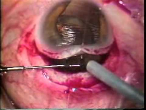 Intracapsular Cataract Extraction (ICCE)