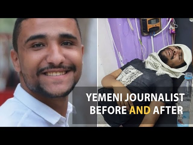 Assil Swid.. How long will violations against journalists in Yemen continue?