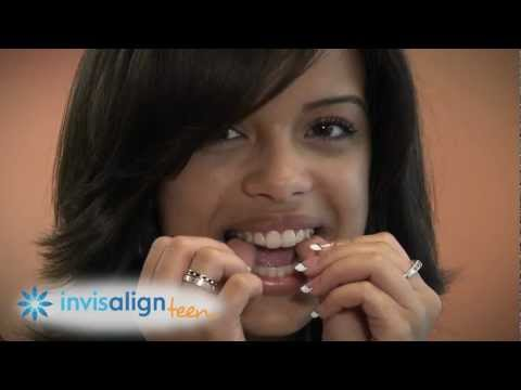 Invisalign Teen Works So 7
