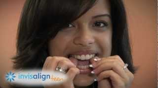 Invisalign and Invisalign Teen -- How it Works and What to Expect?