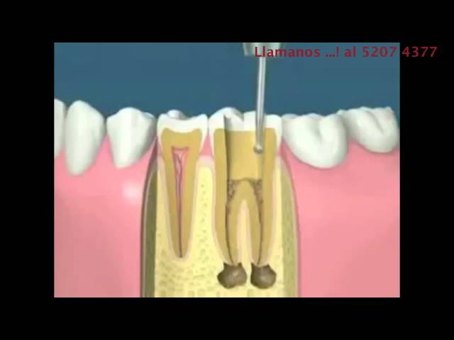 Endodoncia Videos De Viajes