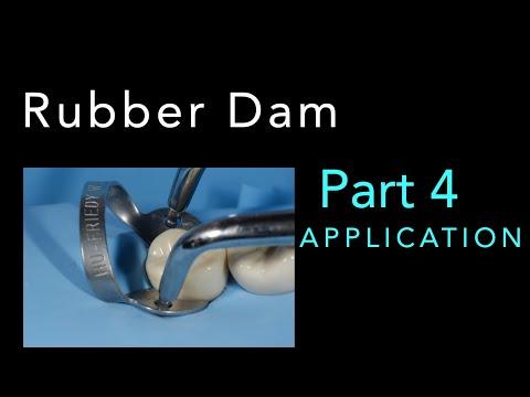 Rubber Dam - PART 4: Application