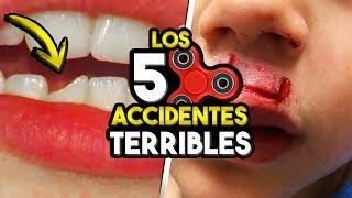 5 ACCIDENTES TERRIBLES QUE DEJARON LOS FIDGET SPINNERS