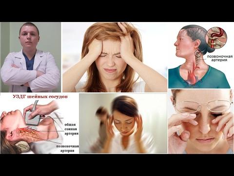 Синдром позвоночной артерии | Vertebral Artery Syndrome