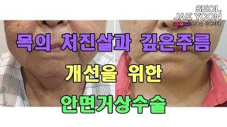 목의 처진살과 깊은주름 개선을 위한 안면거상 수술