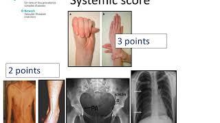 Marfan Syndrome - Diagnosis by Prof Julie De Backer