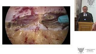 Cure des hernies ventrales par voie totalement extra péritonéale