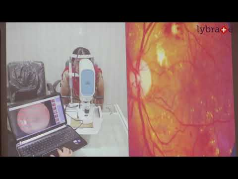 Dr. Neeta Shah Talks About Things To Know About Diabetes || Lybrate