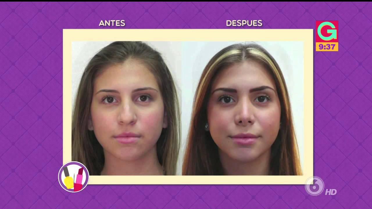 videos cirugia plastica antes y despues de adelgazar