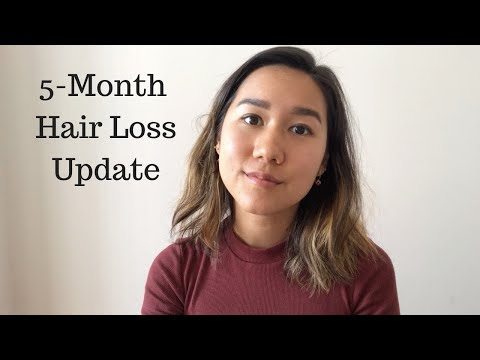 Androgenetic Alopecia Update: Hair Growth And Natural Treatments (Female Pattern Hair Loss Series)