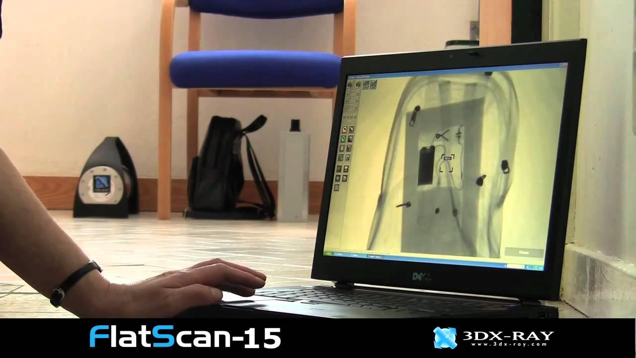 Flatscan 15 X Rays Bag Left In Reception Mov