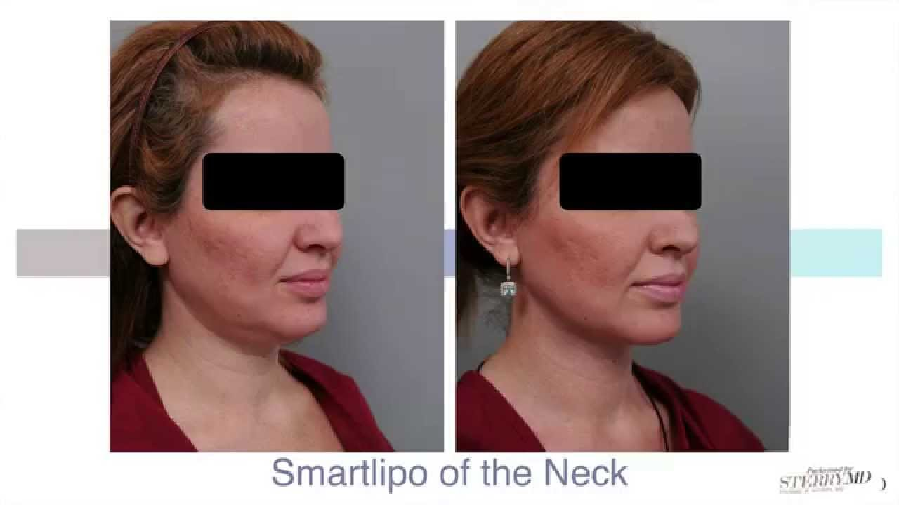 Remarkable, Facial smart lipo much the