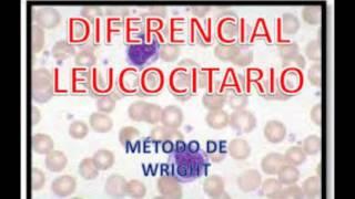 LEUCOCITOS (FORMACION,RECUENTO Y LEUCEMIA)