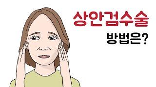 상안검수술후기와 처진눈수술에 대해서 알아보자!