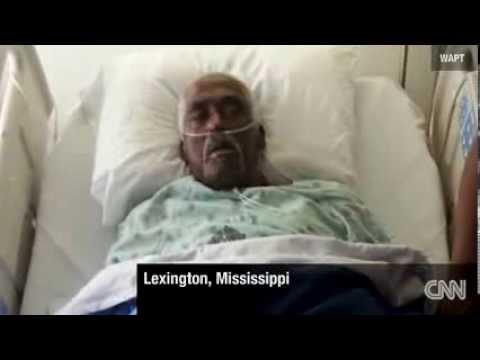 Dead Mississippi Man Begins Breathing In Embalming Room Coroner Says