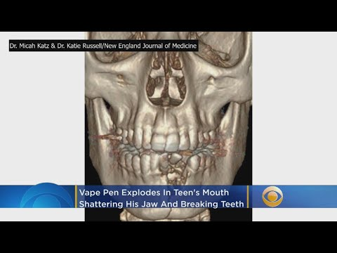 Mel Taylor - E-Cigarette Explodes in Teen's Mouth, Breaks Jaw & Blows Out Teeth