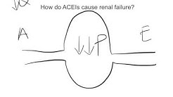 hqdefault - Use Of Ace Inhibitors For Kidney Protection
