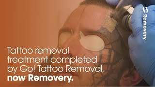 Extensive Facial Tattoo Removal Treatment