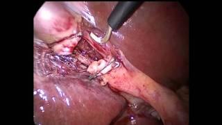 Laparoscopic removal of gall bladder thumbnail
