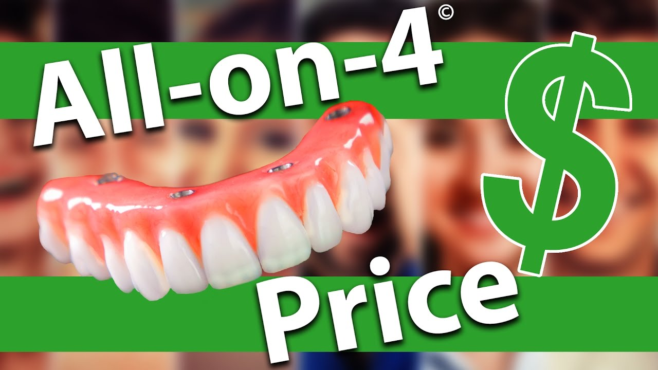 All on 4 Dental Implants Cost - YouTube