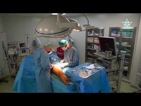 chirurgie vasculară varicoză)