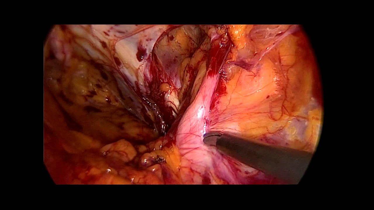 H U00e9rnia Femoral - Cirurgia Por Laparoscopia