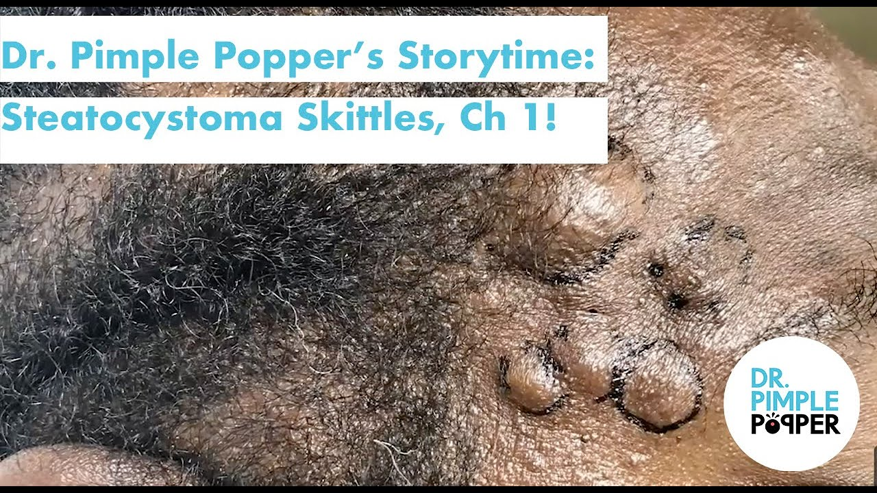 Dr. Pimple Popper's Weekly Story Time: Steatocystoma Skittles Chapter 1