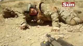UK Soldier Takes Shrapnel To The Face In Afghanistan