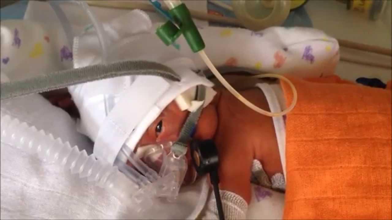 Premature babys born at 26 weeks KajaFilip - YouTube
