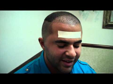 Dr. Jeffrey Epstein: FUE Hair Transplant Procedure 1 day Post op - ...