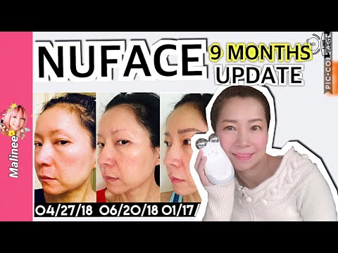 nuface-trinity-9-months-results-before-and-after-pictures-update-review
