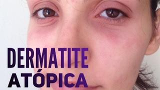 Abaixo dos olhos causa vermelhidão o que