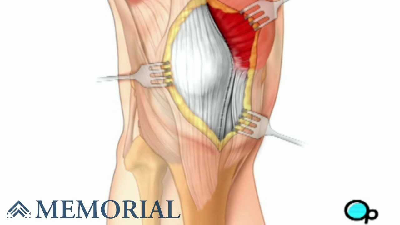 Knee Replacement Surgery - YouTube