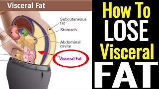 How To Lose Visceral Fat – It