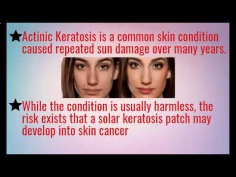 Hyperkeratotic Actinic Keratosis Natural Treatment