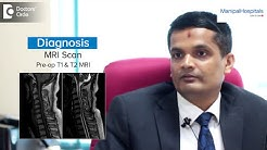 hqdefault - Mri Scan For Back Pain Cost In Indian