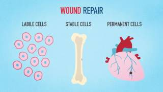 Medical Animation Wound Healing