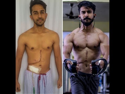 Gym Motivation | Body Transformation of LIVER DONOR | (25 DAYS)