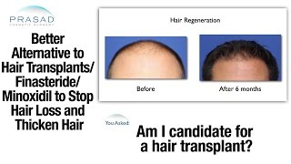 Better Alternative to Hair Transplant/ Finasteride/ Minoxidil to Thicken Hair and Stop Hair Loss